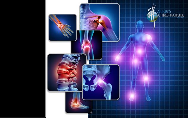 Lombalgie, Arthrose, entorse cervicale, sciatique, migraine, vertiges, scoliose, tendinite, cruralgie, douleur de genou,hernies discales, troubles musculo-squelettiques, Nevralgie d'Arnold