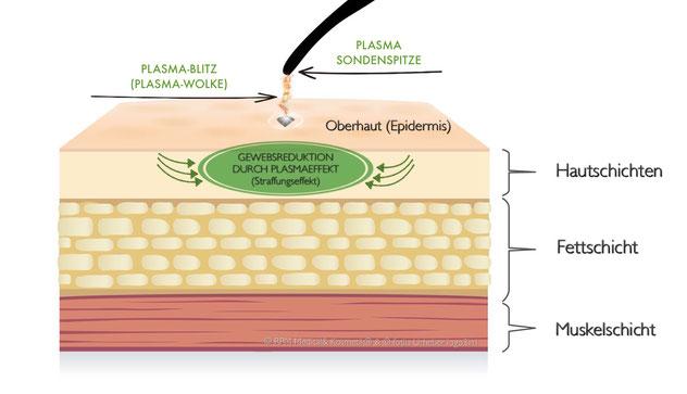 Eine Plasmawolke wird ausgelöst und sorgt für den Straffungseffekt.