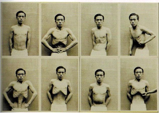 有光の胃の運動写真