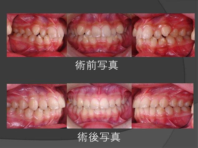 矯正治療 術前術後比較写真