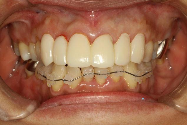 歯並びを審美歯科と部分矯正で治療している途中状態