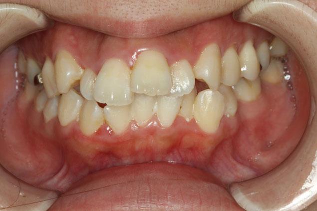 歯茎の出血