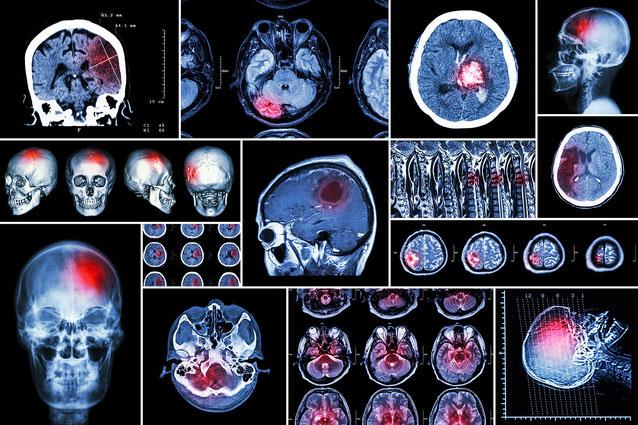 Trouver la preuve d'un crime directement dans le cerveau d'un suspect ou d'un témoin confus, grâce à des images médicales  ?