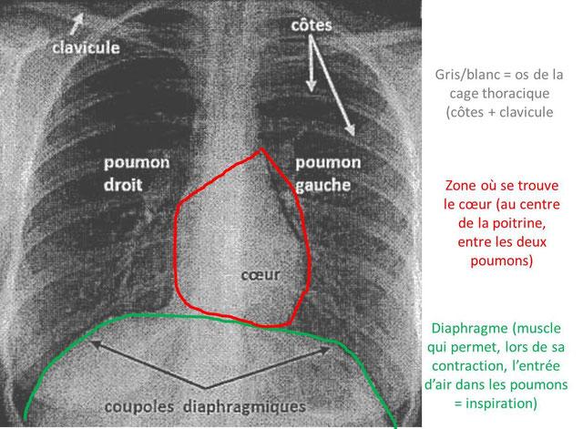 Radiographie interprétée  des poumons d'un humain.