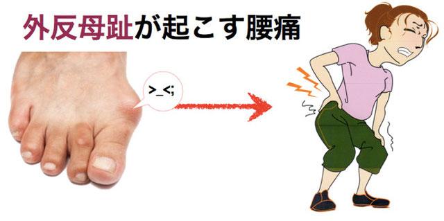 外反母趾による腰痛