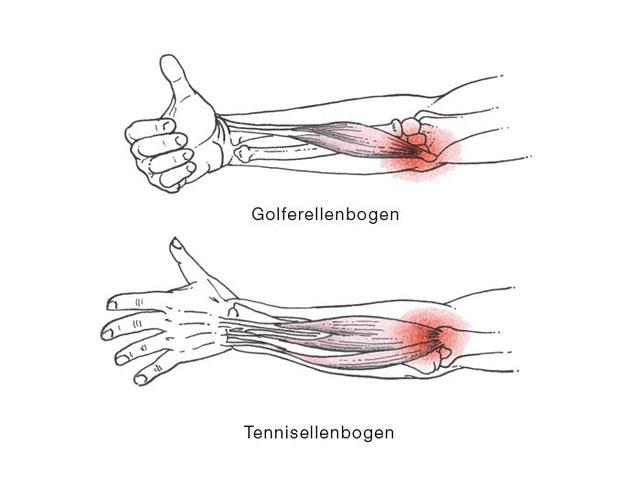 Osteopathie bei Tennisellbogen & Golfellenbogen in München