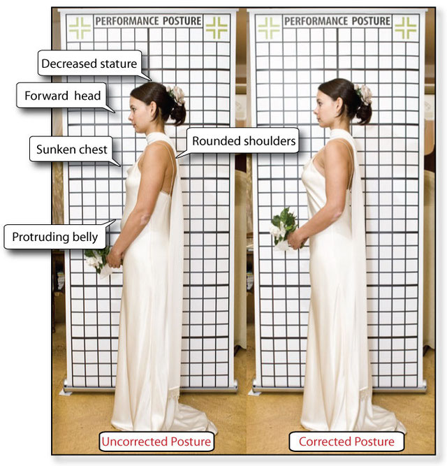 The Alexander Technique for perfect posture for brides