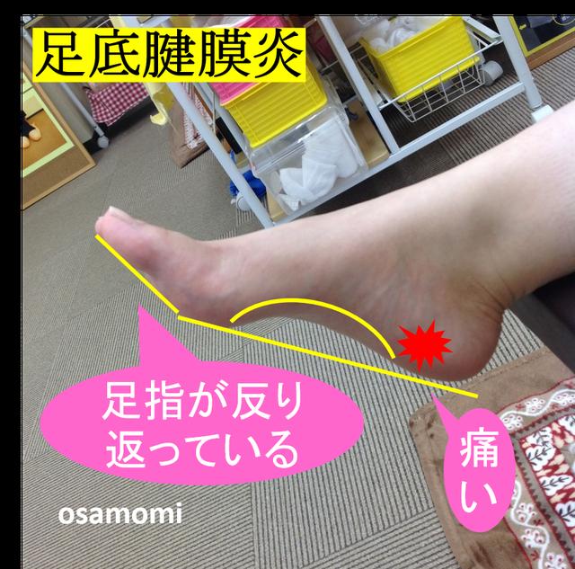 オサモミ整体院 足底腱膜炎 浮き指