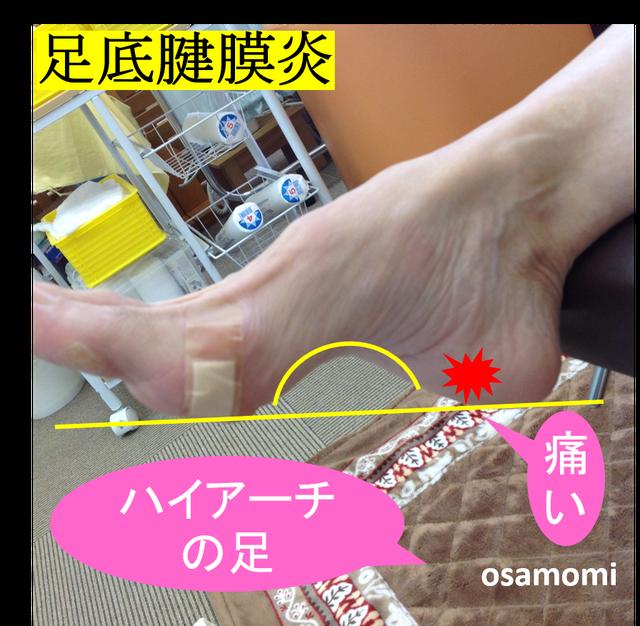 オサモミ整体院 足底腱膜炎 ハイアーチ