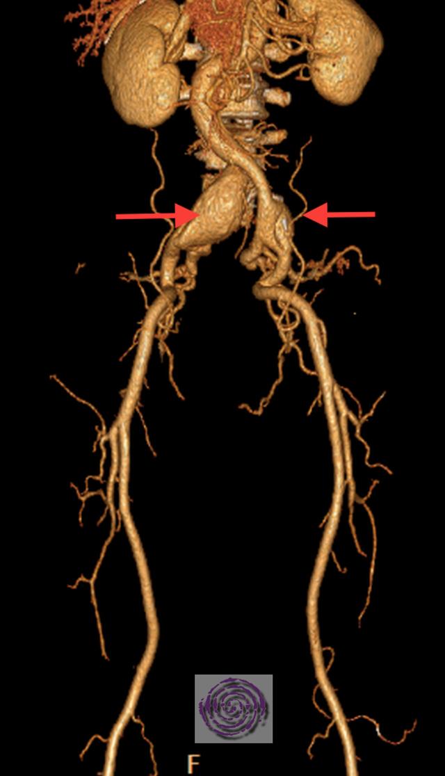 Aneurysmen beider Beckenarterien. Rote Pfeile.