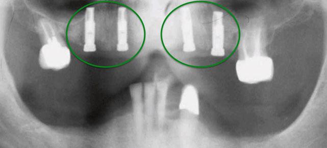 Zahnimplantate Röntgen