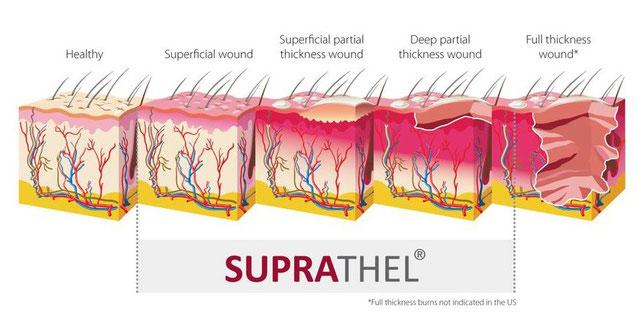 Suprathel - épaisseur de plaies pouvant être traitées