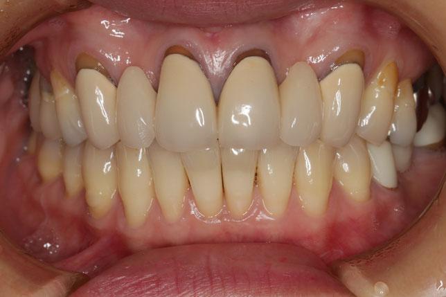 セラミックの歯が長くて、見た目が悪くなってしまったケース