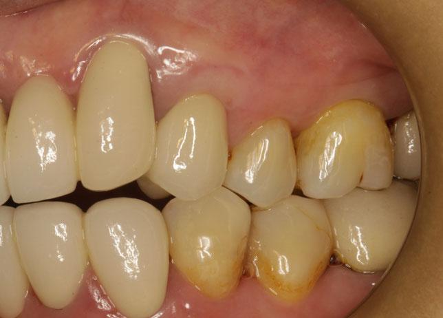 奥歯の差し歯の歯茎の再生治療とオールセラミック治療