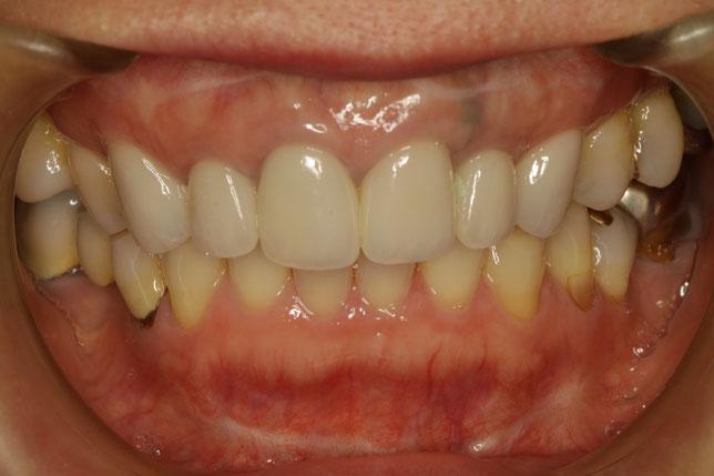 古くなってしまった差し歯をオールセラミックと歯茎の再生治療で治したケース