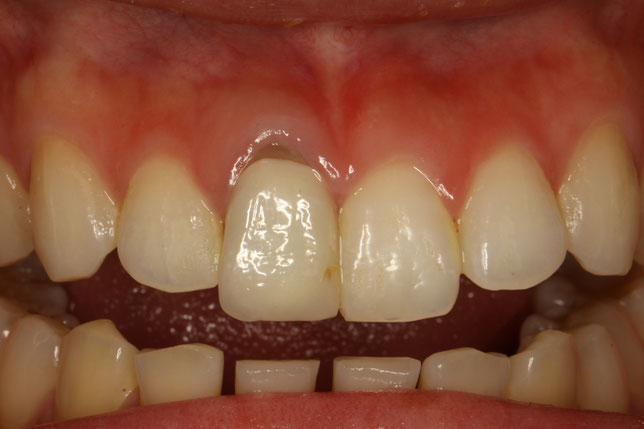 差し歯の歯茎が下がって黒ずんでしまったケース
