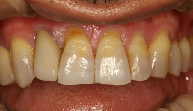差し歯の歯茎が下がってしまったケース