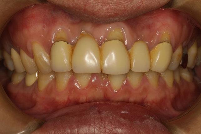歯茎の再生とブリッジ治療