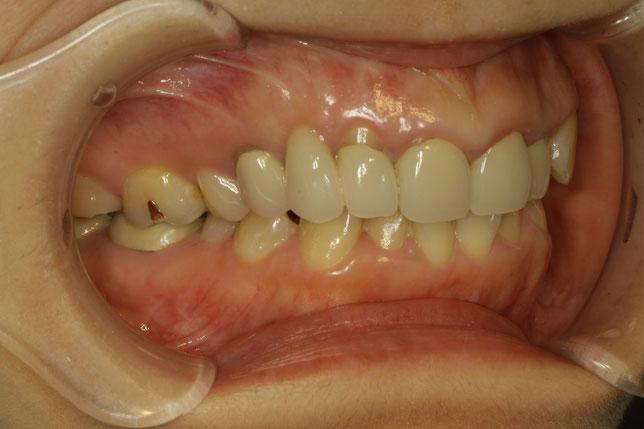 歯茎が下がって長くなったオールセラミックブリッジの治療例