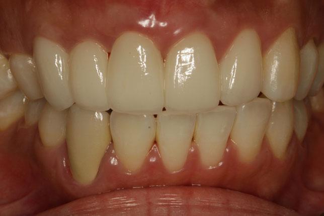 歯茎の再生治療とオールセラミック治療で歯の長さを短くする治療