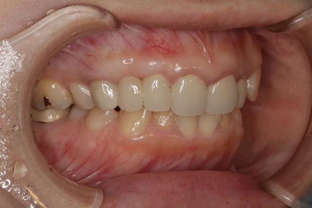 歯茎が下がって長くなったオールセラミックブリッジの治療例 治療後