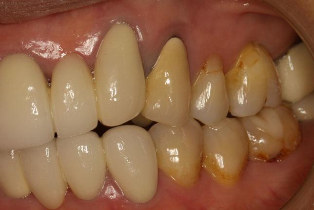歯茎が下がってしまった状態で差し歯を作成したケース