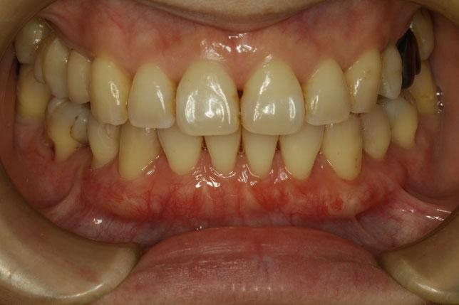 下の前歯の歯茎の再生治療ケース