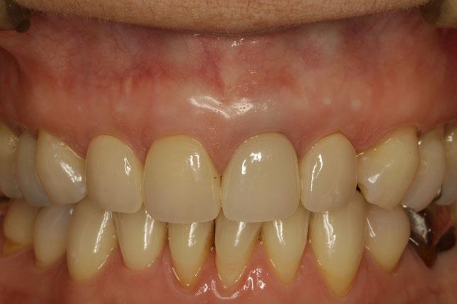 差し歯の長さを小さくする歯茎の再生治療