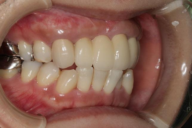 歯茎の再生治療とオールセラミックのやり直しをすることで歯の大きさを小さくしました。