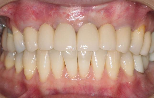 歯の長さを短くして見た目を改善しました。