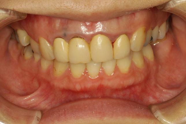 差し歯の歯茎が黒ずんでいるケース