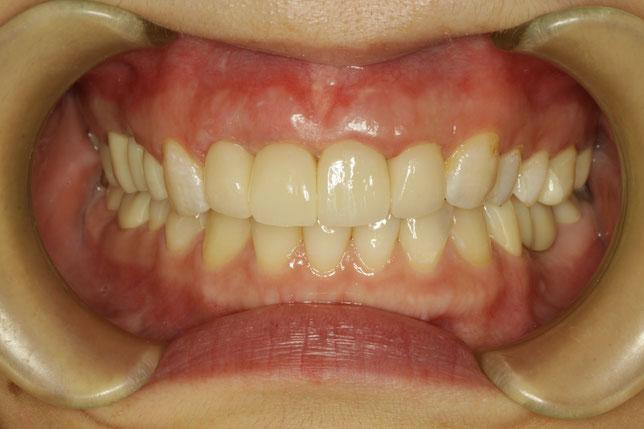 歯茎の黒ずみを治すための歯茎の再生治療の治療例