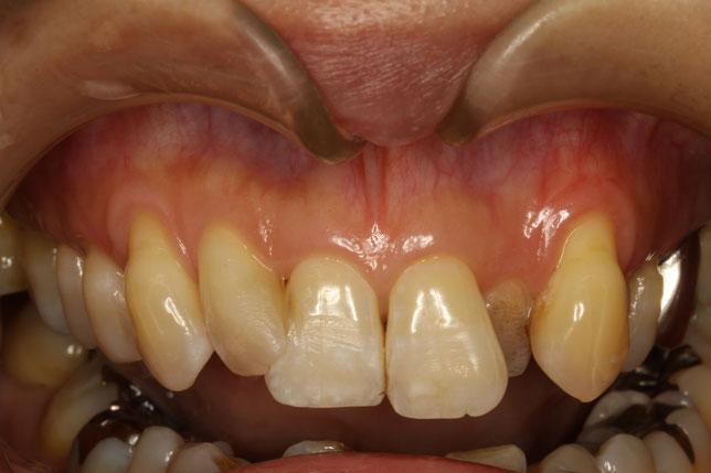 ご自身の歯の歯茎が下がってしまったケース