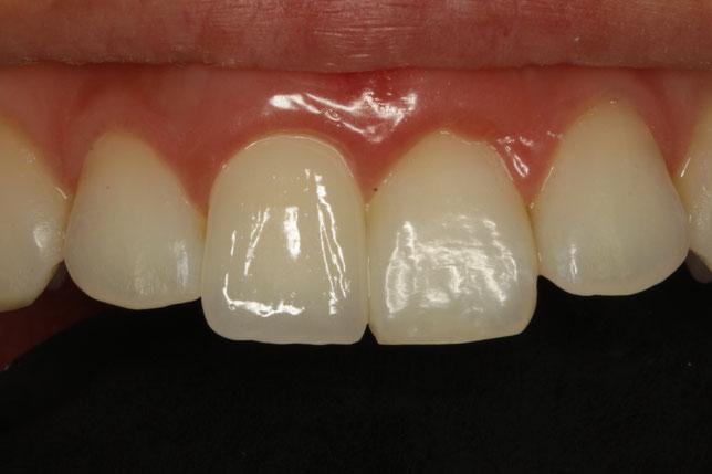 差し歯の歯茎が下がってしまって歯茎の再生治療とオールセラミックの再治療を行ったケース