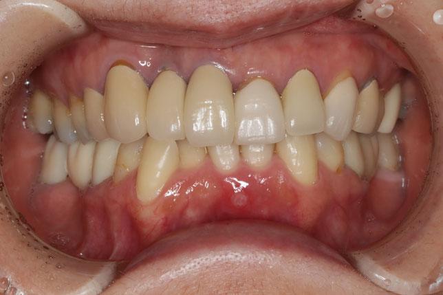 前歯のセラミックや、インプラントの歯が長いのを治したい場合の歯茎の再生治療