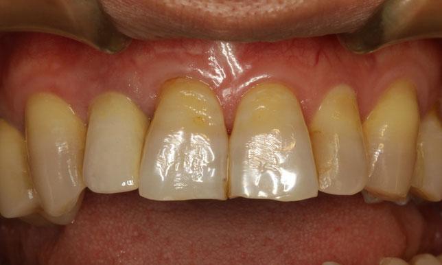 差し歯の歯茎が下がってしまった時の歯茎の再生治療