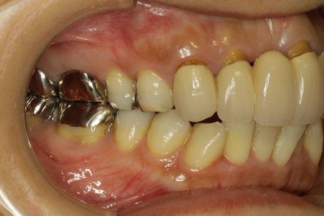 前歯のオールセラミックの歯茎が下がってしまって隙間が開いてきています。