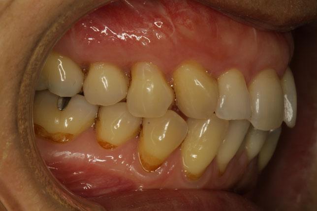 歯茎の再生治療を行ったケース