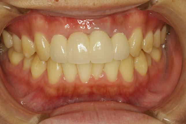 ブリッジと歯茎の再生