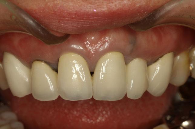 古くなってしまった差し歯の歯茎が下がってしまった時の再治療ケース