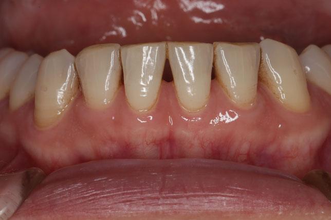 歯と歯の間の隙間の治療例