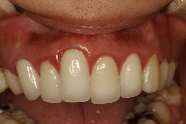 長い差し歯を歯茎の再生治療で普通の長さに回復させたケース