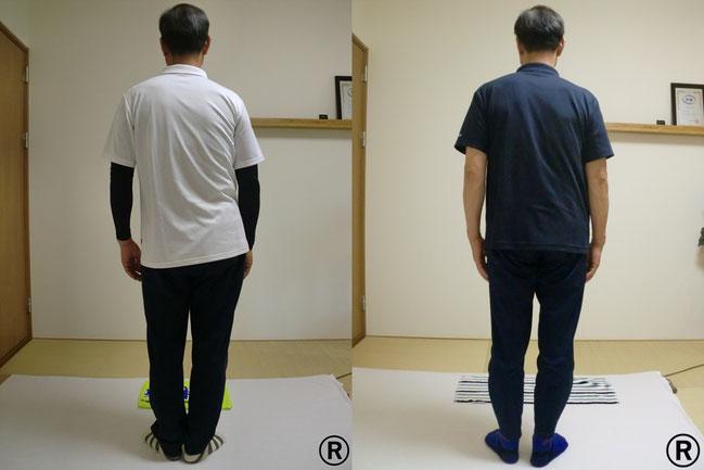 施術前と施術後の体の形の変化