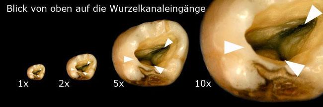 mikroskopische Vergrößerung eines Zahnes unter dem Mikroskop