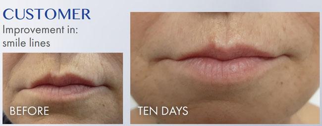 Результаты применения Lamiderm через 10 дней