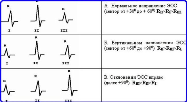 """ЭОС - Шпаргалки для """"скорой помощи"""""""