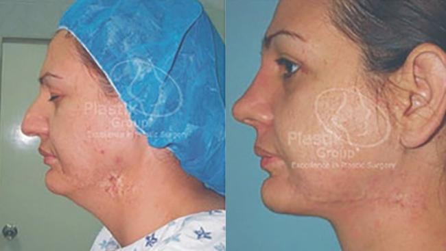 Cirugia de cara