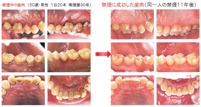 八戸市 くぼた歯科 歯医者 禁煙外来 歯周病 口臭
