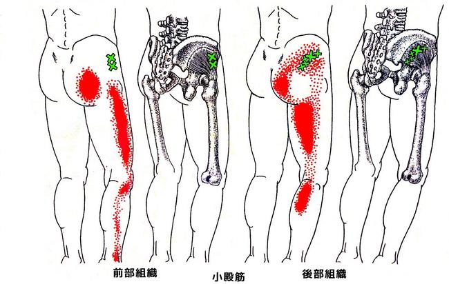 小殿筋のトリガーポイントと関連痛の部位