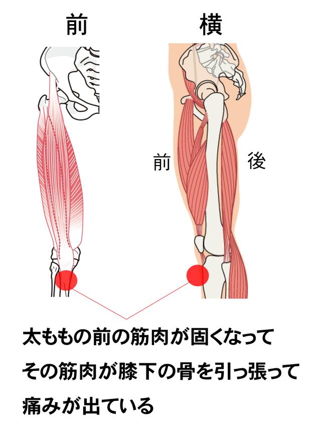 オスグットの痛みが出る原因は、太ももの前の筋肉あ使いすぎで固くなって、膝下の骨を引っ張って痛みが出るからです。オスグットのときは、太ももの筋肉をマッサージして柔らかくしてあげることで、痛みを和らげることができます。